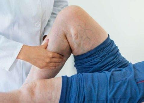 leg-cramps-home-treatment-in-hindi