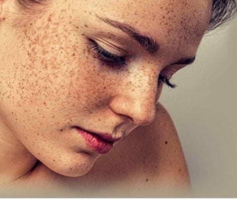 क्या होता है पिगमेंटेशन और कैसे करें इसका घर बैठें इलाज – Kya hota hai Skin Pigmentation?