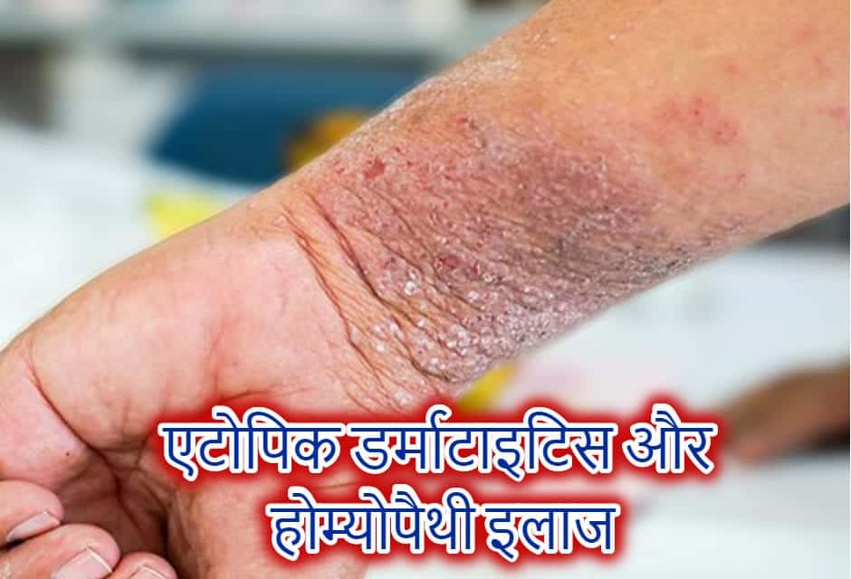 Atopic Dermatitis and it's homeopathy Treatment in Hindi