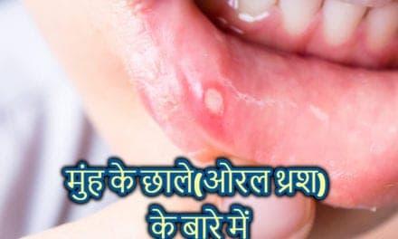 oral thrush in hindi – मुंह के छाले के बारे में