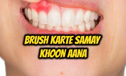 ब्रश करते समय खून आना – bleeding gums in hindi