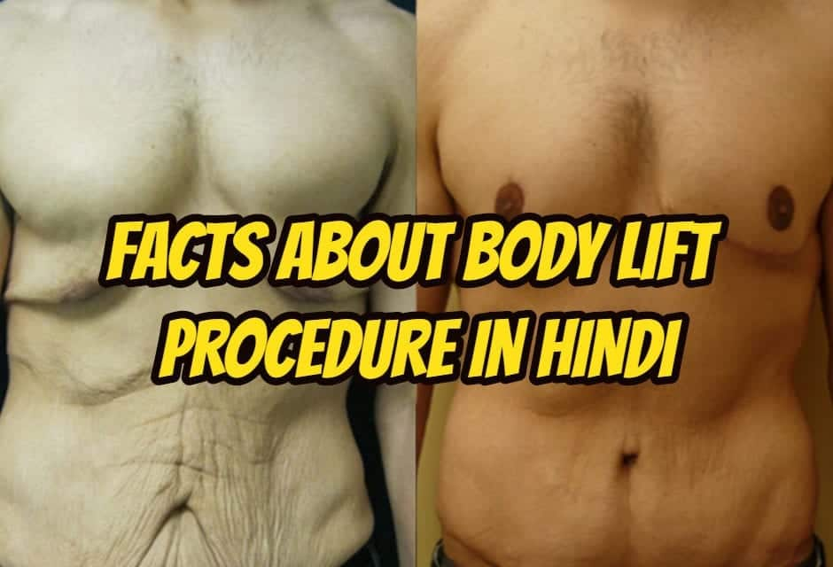 Facts about body lift procedure in hindi