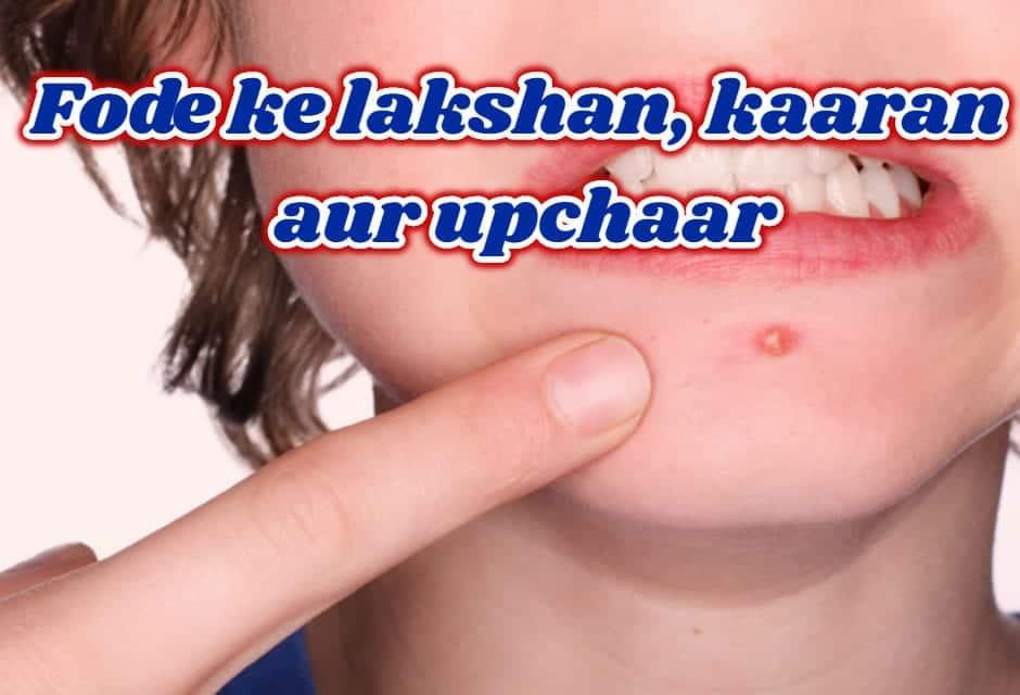 फोड़े के कारण और इलाज – boils causes & treatment in hindi