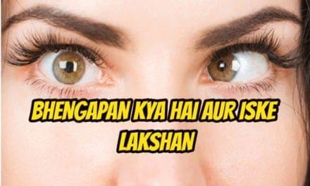 भेंगापन के बारे में – squint eyes in hindi