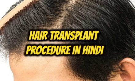 hair transplant procedure in hindi