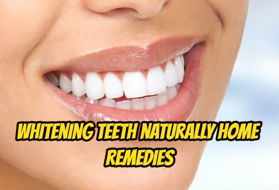 दांतों को चमकाने के घरेलू उपाय – whitening teeth naturally home remedies in hindi