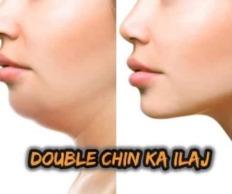 Double Chin ka ilaj