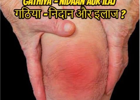 gathiya-nidaan-aur-ilaj