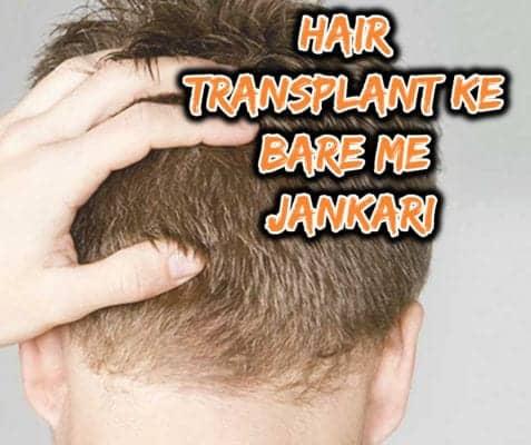 Hair transplant ke bare me jankari