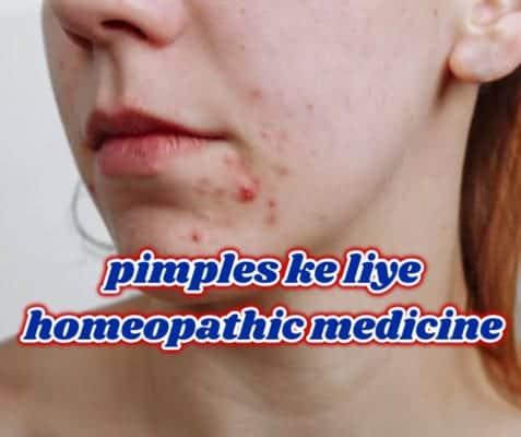 पिंपल की होम्योपैथी दवाएं – pimples ke liye homeopathic medicine