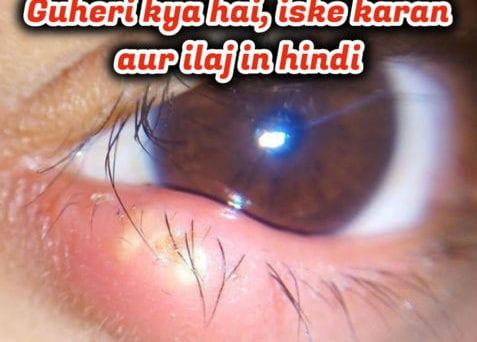 guheri-kya-hai-iske-karan-aur-ilaj-in-hindi