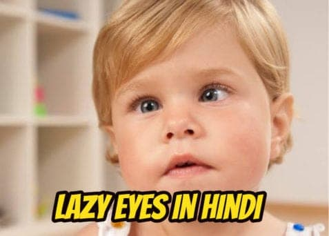 lazy-eye-in-hindi