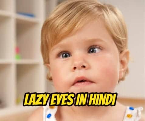 लेजी आई (मंददृष्टि) – lazy eye in hindi
