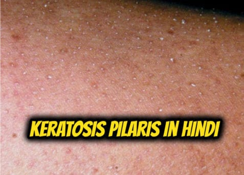 keratosis-pilaris-in-hindi