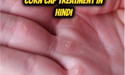 Corn cap treatment in hindi