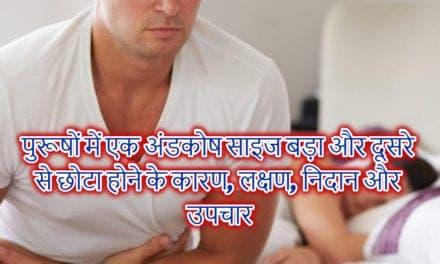टेस्टिस साइज बड़ा, छोटा होना – testis up and down problem solution in hindi