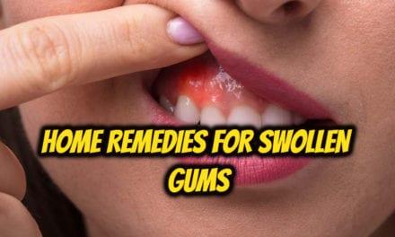 मसूड़ों की सूजन का घरेलू इलाज – home remedies for swollen gums in hindi
