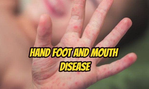 बच्चों को हैंड, फुट एंड माउथ डिजीज – hand foot and mouth disease in hindi