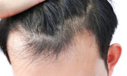 हेयर लॉस के बारे में सबकुछ – hair loss in hindi