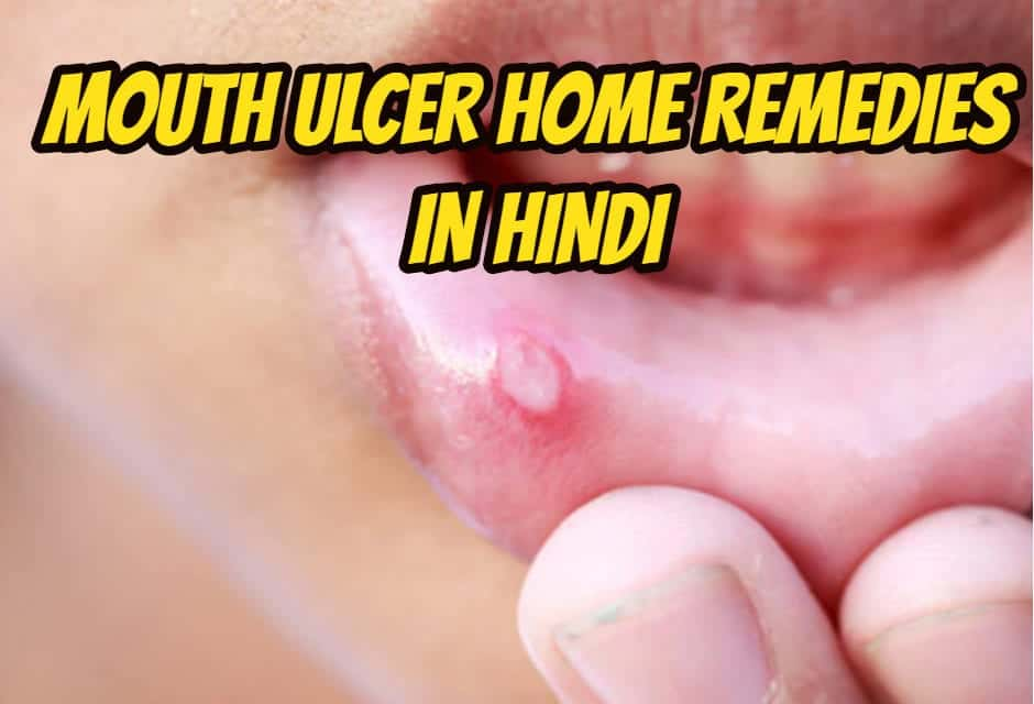 माउथ अल्सर के कारण और इलाज – mouth ulcer home remedies in hindi