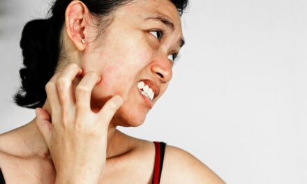 चेहरे पर सफेद दाग के कारण – Causes of white spots on face in hindi
