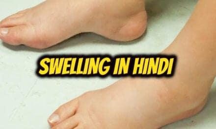 सूजन के बारे में – swelling in hindi