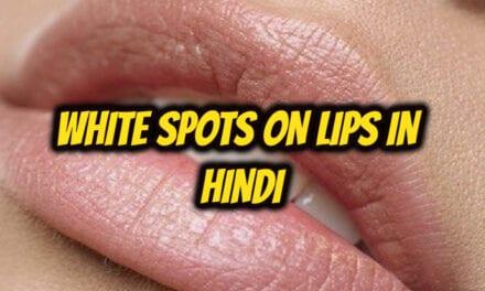 होठों पर सफेद स्पॉट – white spots on lips in hindi