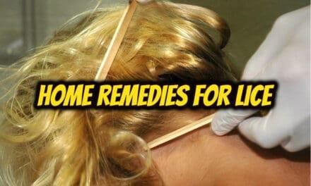 सिर के जूँ का घरेलू उपचार – home remedies for lice
