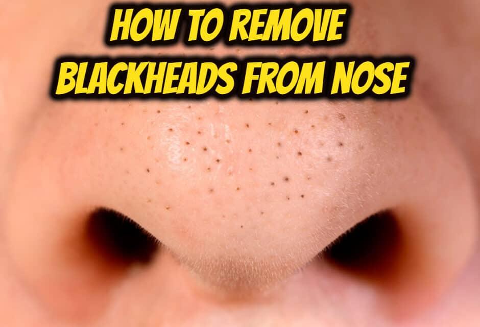 नाक से ब्लैकहेड कैसे हटाएं – how to remove blackheads from nose
