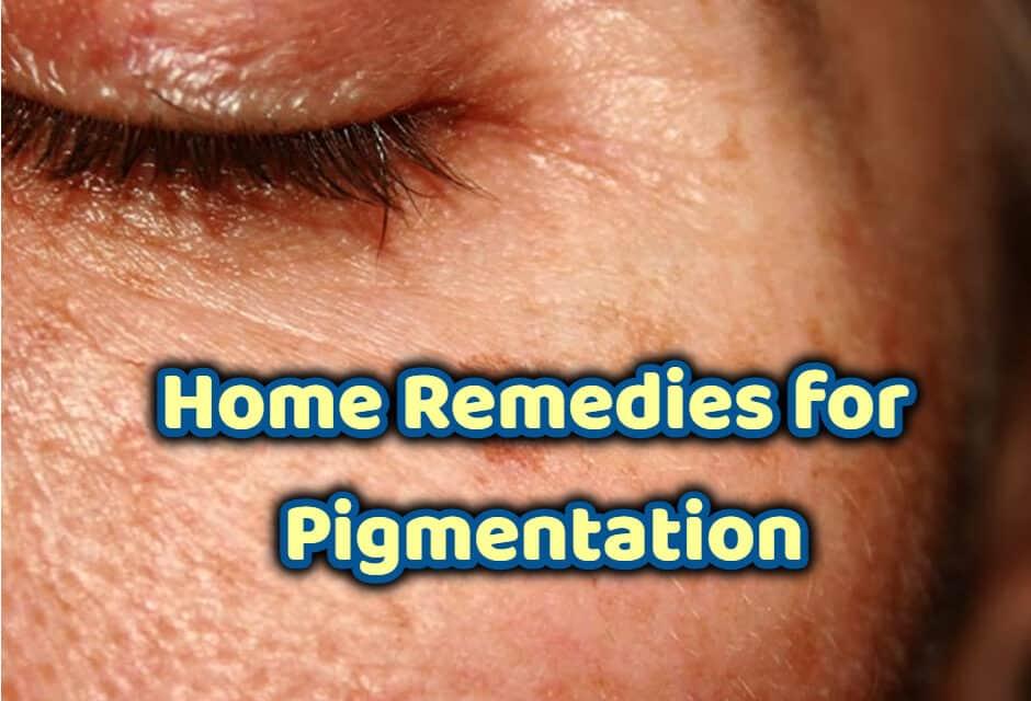 पिगमेंटेशन के घरेलू उपाय – home remedies for pigmentation