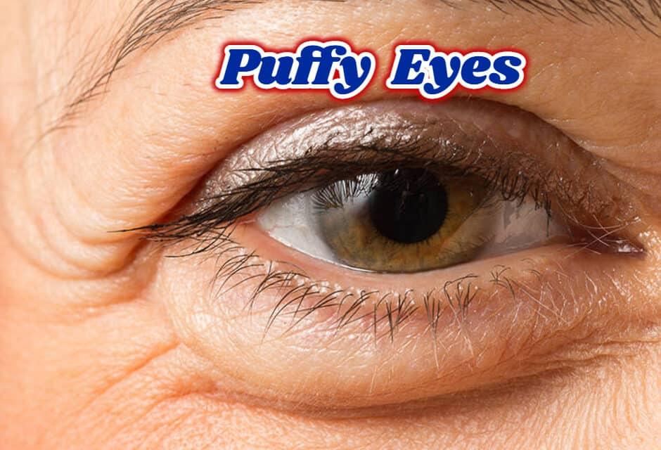 आंखों की सूजन से छुटकारा पाएं – puffy eyes