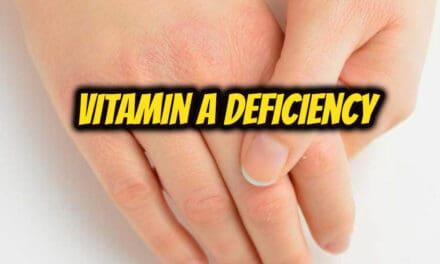 विटामिन ए की कमी के बारे में – vitamin a deficiency