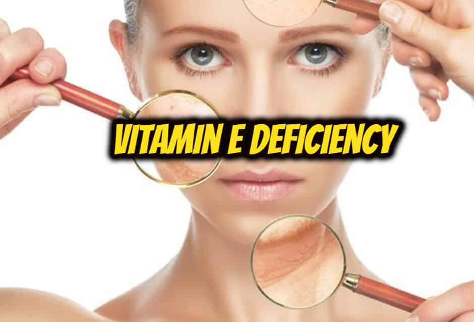 विटामिन ई की कमी – vitamin e deficiency