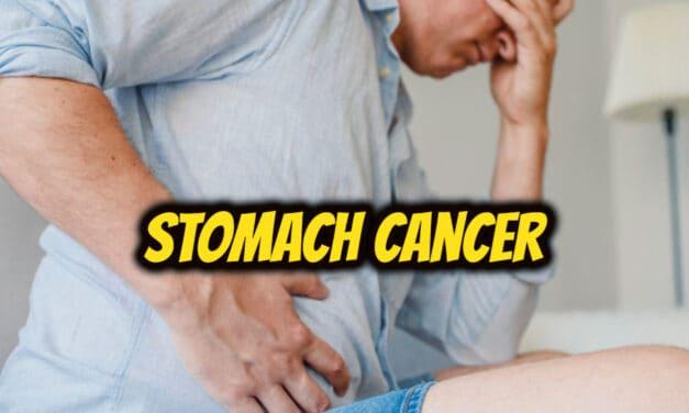 पेट का कैंसर – stomach cancer