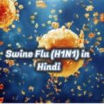 स्वाइन फ्लू – swine flu (H1N1)