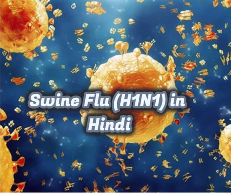 Swine Flu (H1N1) - causes, risk factors, symptoms, diagnosis, treatment, home remedies, and prevention