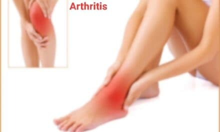 गठिया का आयुर्वेदिक इलाज – ayurvedic treatment for arthritis
