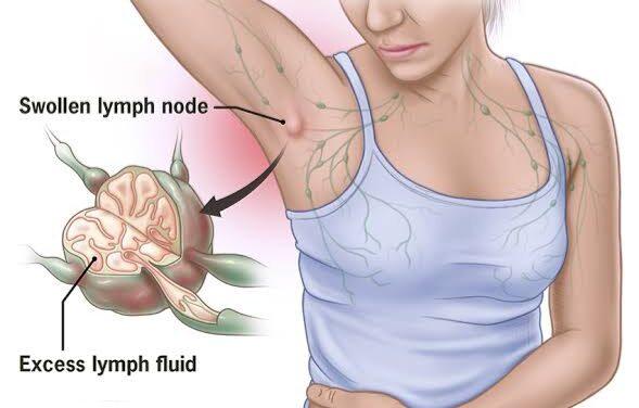 बगल (कांख) में दर्द – armpit pain