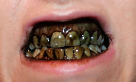 काले दांत के कारण, लक्षण, इलाज – black teeth