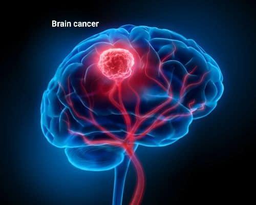दिमाग का कैंसर – Brain Cancer