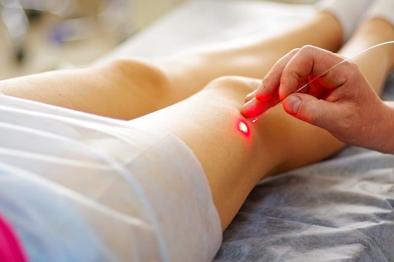 लेजर हेयर रिमूवल के साइड इफेक्ट – laser hair removal side effects
