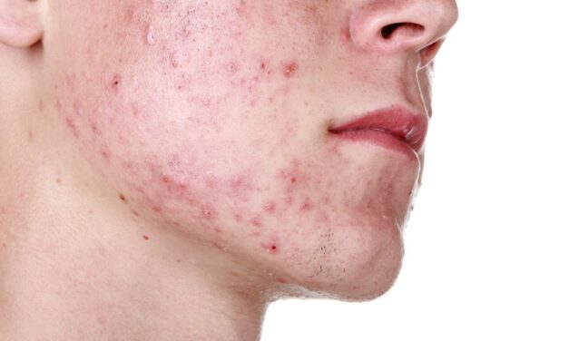 स्किन रैश के बारे में – skin rash