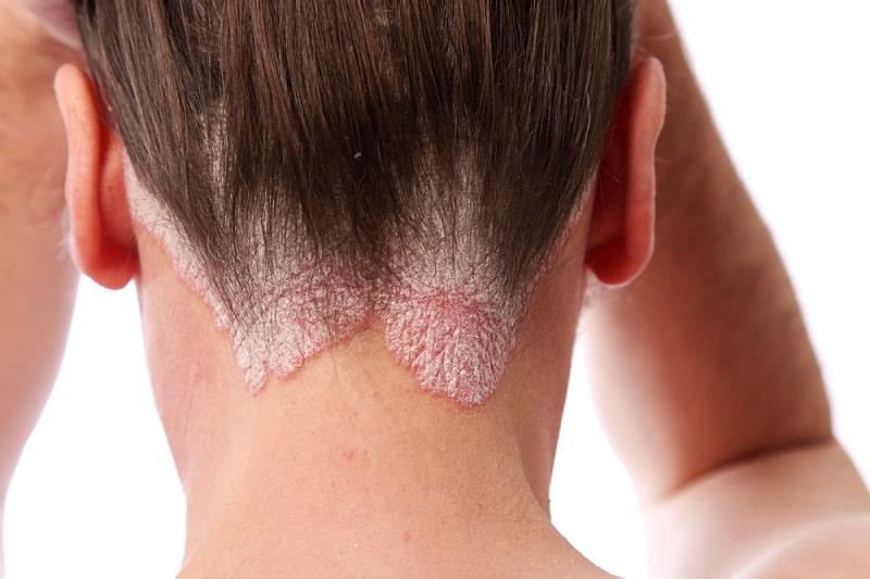 स्कैल्प सोरायसिस के घरेलू उपाय – Scalp Psoriasis Home Remedies