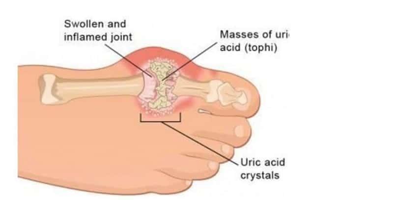 यूरिक एसिड आयुर्वेदिक इलाज – uric acid treatment in ayurveda