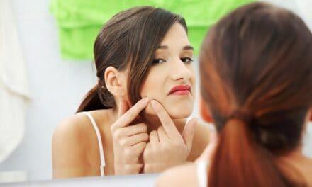 पिंपल पर टूथपेस्ट – toothpaste on pimples