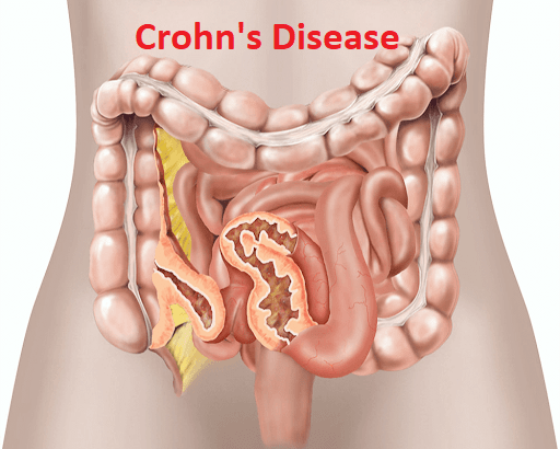 क्रोहन रोग – Crohn's Disease