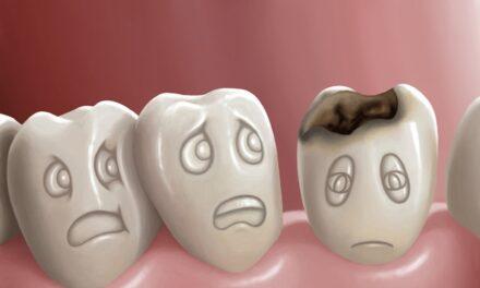 कैविटी से छुटकारा कैसे पाएं – How to Get Rid of Cavities at home