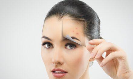 पिंपल के कारण होने वाले डार्क स्पॉट को कैसे हटाएं – How to remove dark spots caused by pimples